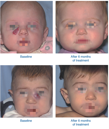 Before and After Hemangeol Treatment